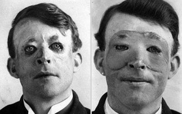 21.) Walter Yeo, one of the first people to undergo a skin transplant and advanced plastic surgery in 1917.