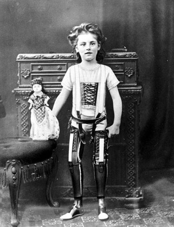 27.) A girl with artificial legs in 1890.